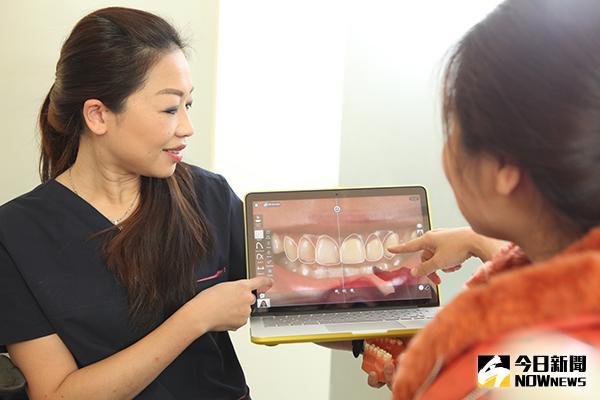 ▲目前微笑重建美齒會先進行口腔掃描,透過軟體將全口的牙齒型態轉化成圖檔輸入電腦。(圖/權美牙醫提供)