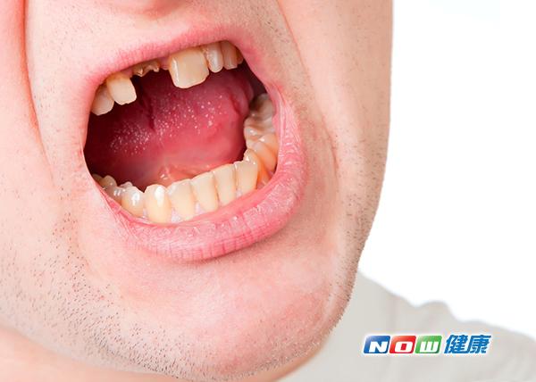 牙齒整顆撞掉怎麼辦? 立即就醫有機會種回