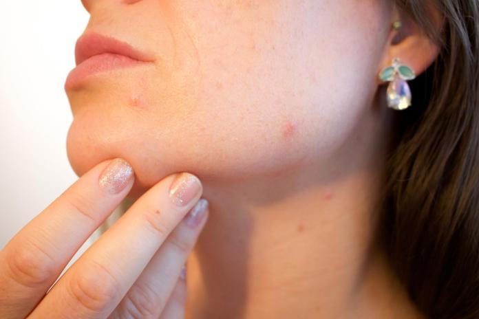 ▲痘痘是不少愛美女性的頭號大敵。(圖/翻攝自Pixabay)