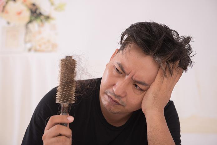 ▲對抗落髮再生新髮 醫生教你正確髮門。(圖/公關照片)