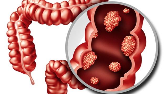 ▲大腸癌已連續多年位居癌症新發人數的榜首,且有年輕化趨勢。(圖/ingimage)
