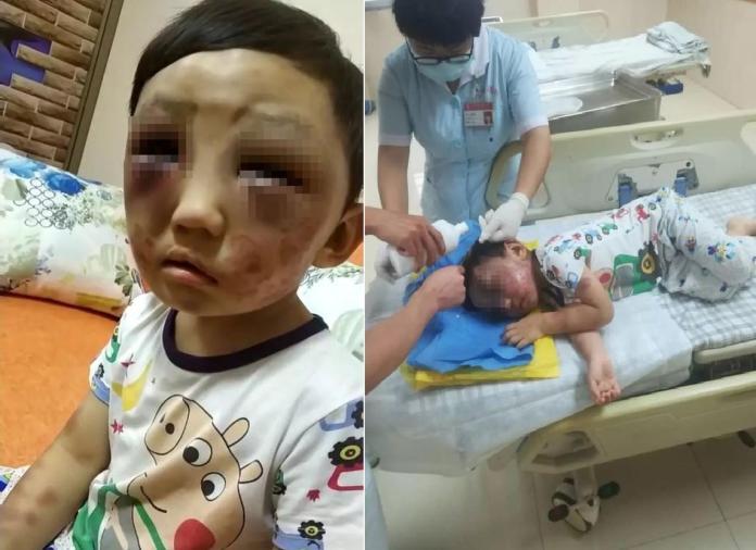 ▲廣東東莞一名 4 歲男童遭母親毒打到雙眼腫脹,而母親面對眾人指責竟反嗆「打自己的孩子天經地義」。(圖/翻攝自微博 , 2018.06.07)