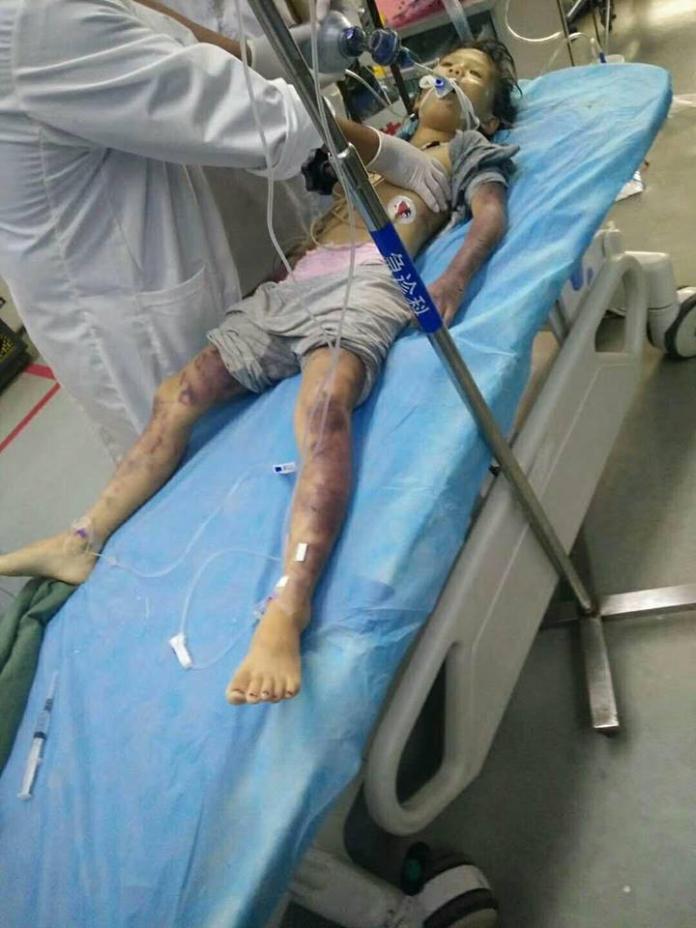 <b>狠父</b>鞭抽6歲女兒1小時 醫:執業16年見最痛心場景
