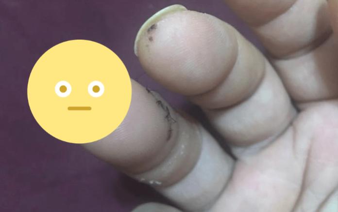 江明學PO「鋼釘手指」照 「沒人敢直視超過1秒」