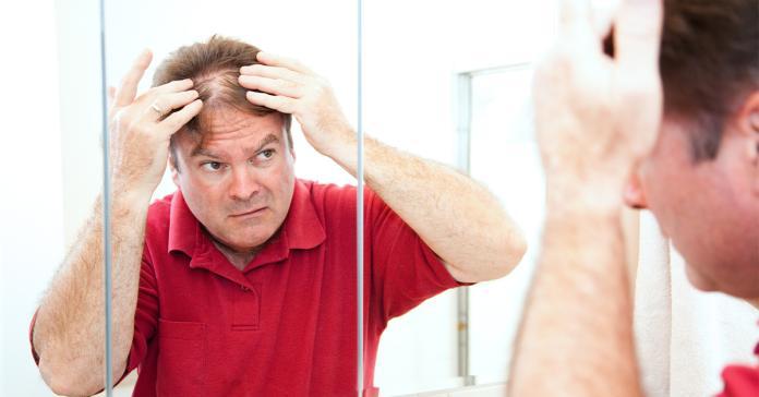 <b>鬼剃頭</b>都是壓力惹禍? 中西醫這樣治療圓形禿