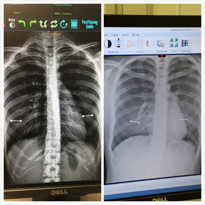 女照X光胸前多了「2條槓」!媽媽看後一秒變臉 醫生笑翻
