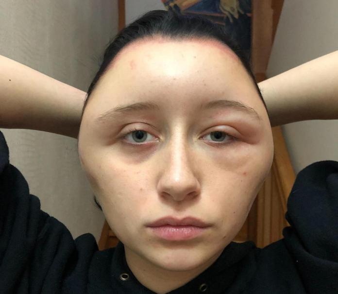 DIY染髮過敏 少女腫成「燈泡頭」險死