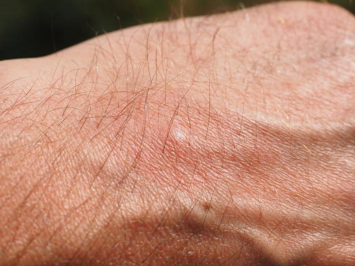 「異位性皮膚炎」一發作就全身癢 男子不洗澡還患憂鬱症