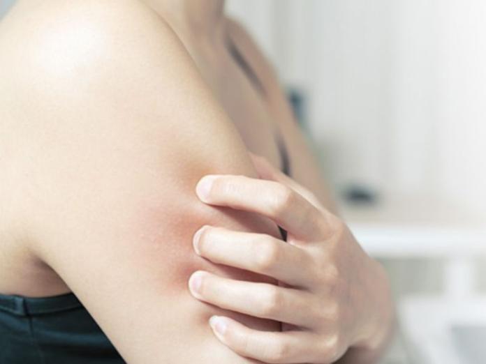 異位性皮膚炎癢不停?醫師公開「3大要點」告別抓癢人生