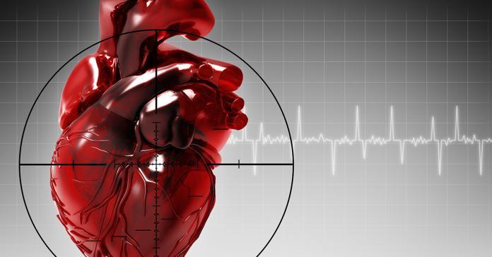 主動脈剝離恐造成器官缺氧壞死 要命機率高