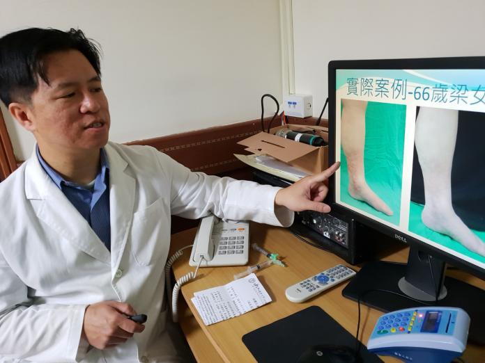 靜脈曲張新療法 泡沬注射無需開刀療效佳