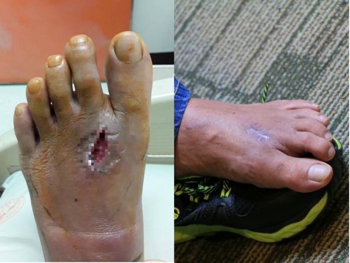 「腳掌被鐵釘刺穿」他打破傷風後仍腫痛 發現染罕見細菌