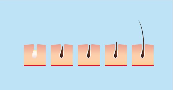 壓力大服用肌肉鬆弛劑 虛冷體質<b>鬼剃頭</b>機率高