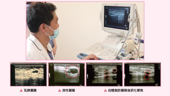 隆乳手術停看聽 醫師解析選擇不迷惘