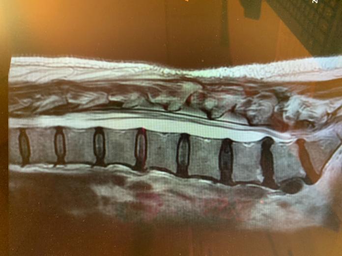 <br> ▲醫師建議避免久坐、久站、或是彎腰搬重物,以免頸腰椎間盤突出,壓迫神經。(圖/中醫大新竹分院提供)