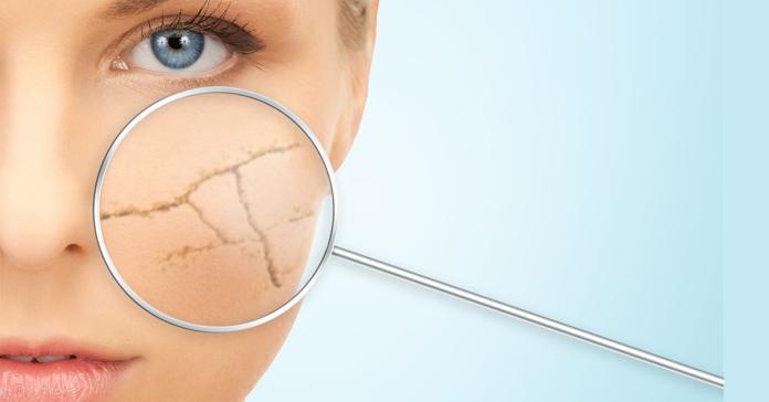細胞有氧趕走黑色素 肌膚透亮不用「妝」