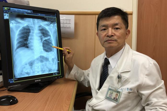 驚!男子大便太用力 <b>胃</b>竟「衝破橫隔膜」跑到胸腔內