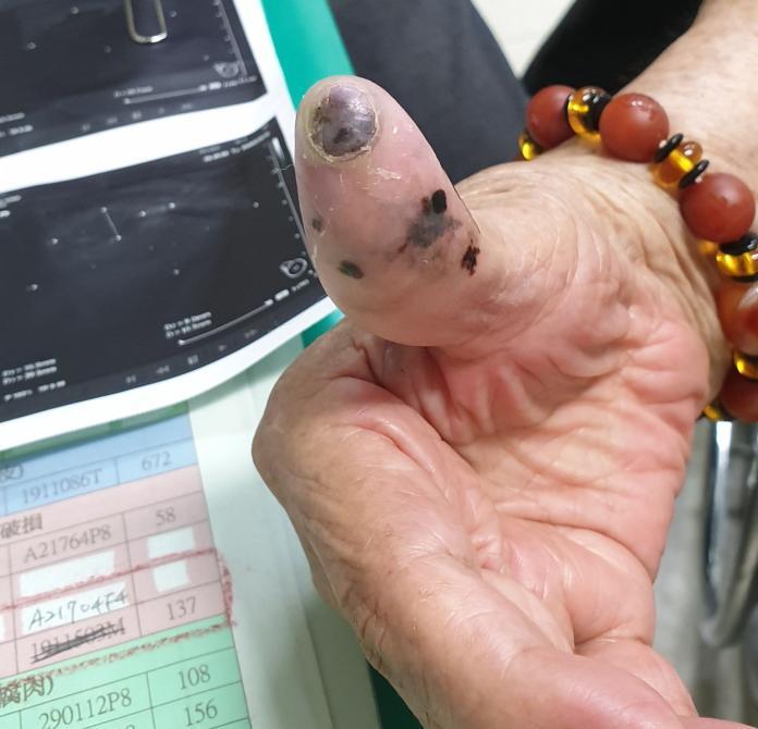 ▲阿嬤因腋下腫塊就醫,沒想到竟是黑色素瘤。(圖/彰化醫院提供)