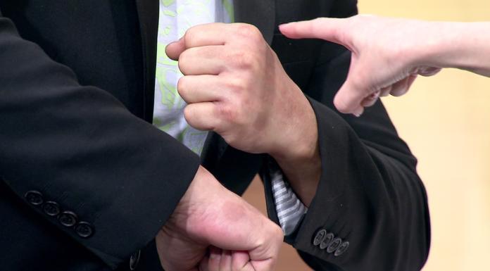 <br> ▲ 陳為民秀出手上的濕毒疤痕。(圖/年代提供)