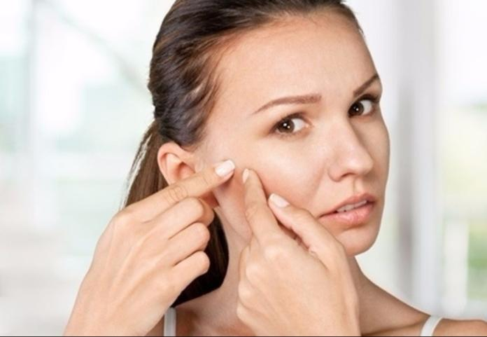 ▲痘痘肌更要正確洗對臉,不讓痘痘粉刺在臉上開派對。(圖╱pixabay )