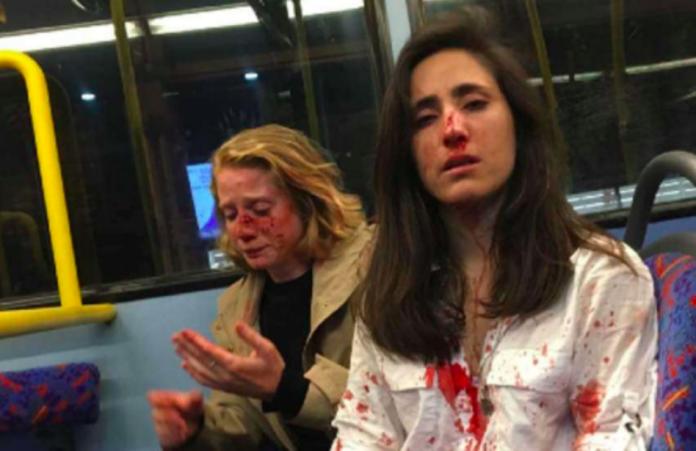 女同志倫敦搭巴士遭騷擾 拒表演<b>接吻</b>被打滿臉是血
