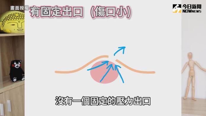 <br> ▲ 痘痘中的膿液若無固定的出口,傷口則會變大,相反則傷口較小。(圖/Dr. Ivan 6 授權)
