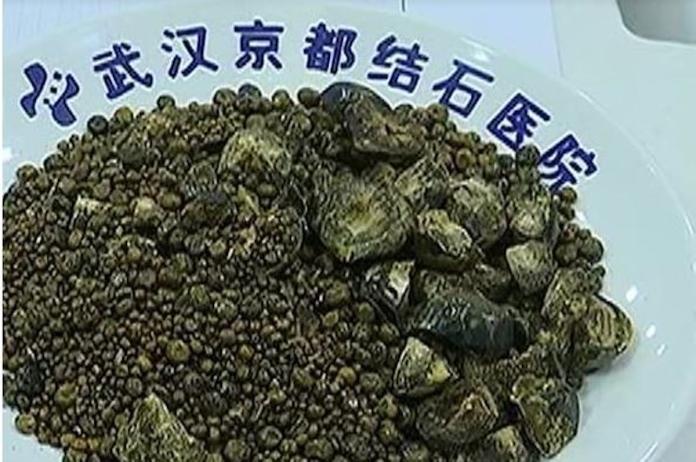 <br> ▲中國大陸一名 54 歲婦人日前突然感到腹部劇烈疼痛,就醫檢查後發現,膽囊中已經被超過 7 千多顆結石塞滿。醫生指出這是長期不吃早餐也不喝水導致。(圖/翻攝自微博)