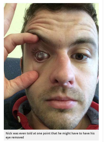 ▲大部分感染「棘阿米巴角膜炎」的民眾,有 70% 到 85% 都是隱形眼鏡配戴者,尤其是戴著隱形眼鏡游泳、洗澡的人最常被感染。(圖/翻攝自外媒)