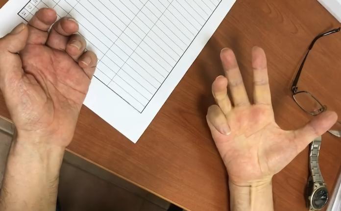 手抖影響生活日常! <b>帕金森氏症</b>靠刺激「腦」有新解方