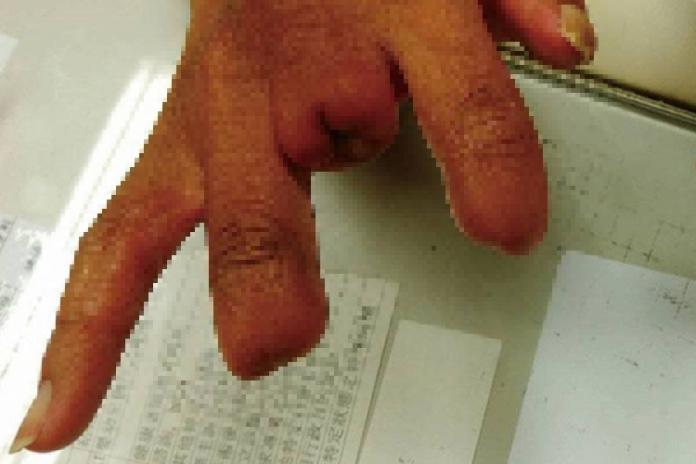 手指發黑壞死!30年「習慣」害截肢2次 醫揭密可怕原因