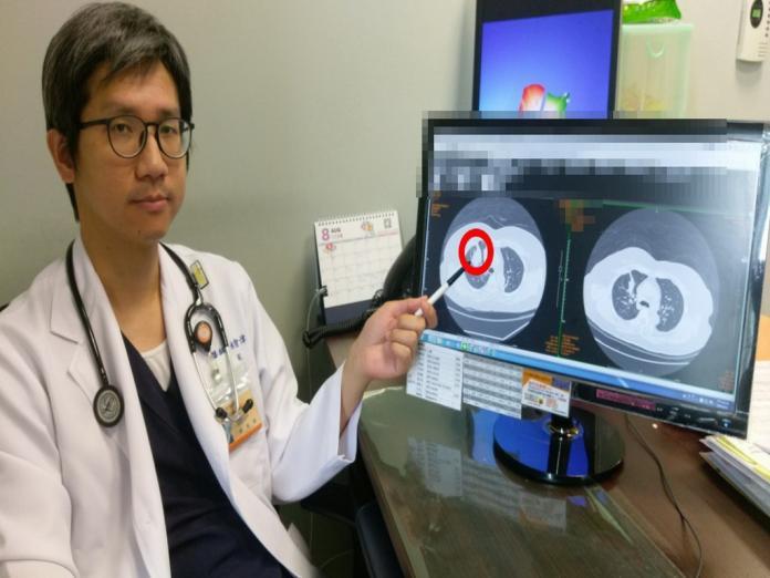 ▲醫生指著肺腺癌位置。 (圖/林重鎣攝2019.8.12)