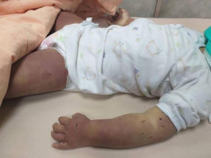 薛姓女童慘遭虐死,死時全身遍體麟傷,慘不忍睹。