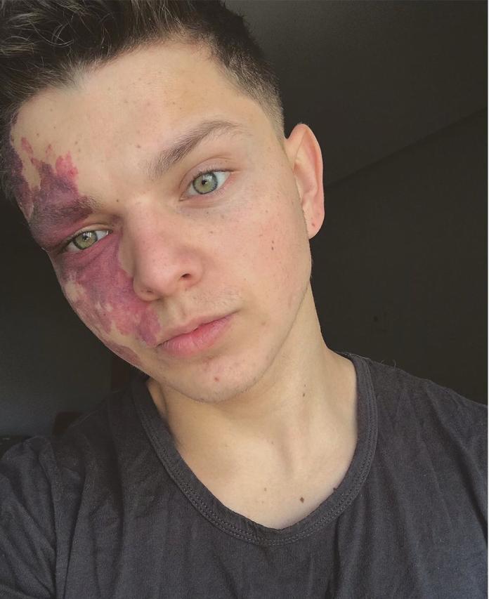 <br> ▲ 20 歲少年臉上的胎記。(圖/翻攝自推特)