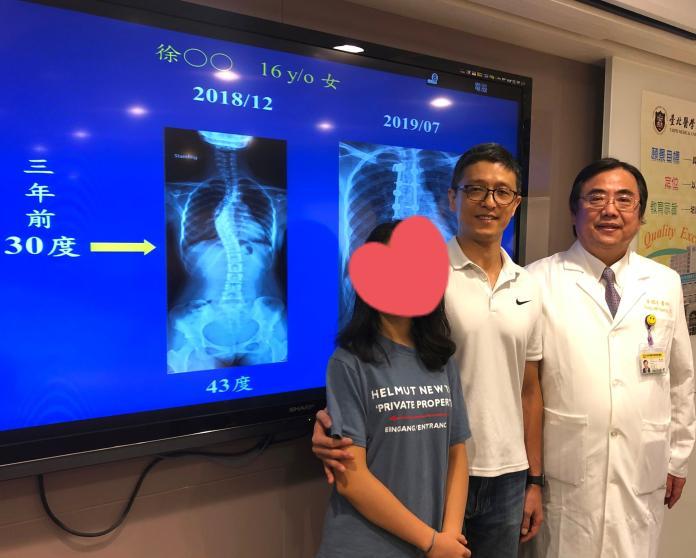 ▲ 16 歲徐小姐(左) 3 年前發現脊椎側彎,去年脊椎側彎的角度變大,今年利用暑假期間開刀治療,術後與父親(中)一同亮相。(圖/台北醫學大學附設醫院提供)