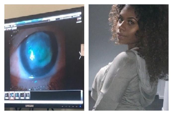 ▲女大生因為戴隱形眼鏡玩水受感染,恐永久性失明。(合成圖/翻攝自 gofundme )