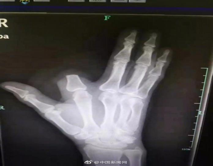 ▲杭州市 1 名 60 歲的張姓男子,日前在山上被百步蛇咬到,一急之下竟直接將手指砍斷保命。(圖/翻攝自大陸微博)