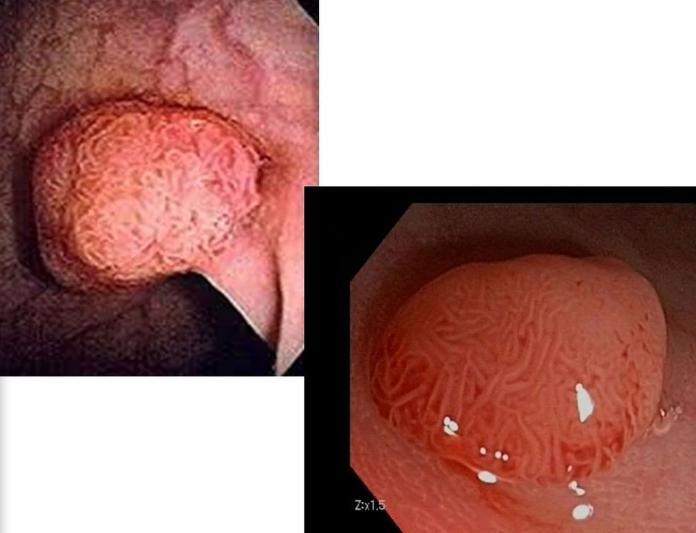 大腸鏡檢查前的清腸 你做對了嗎?