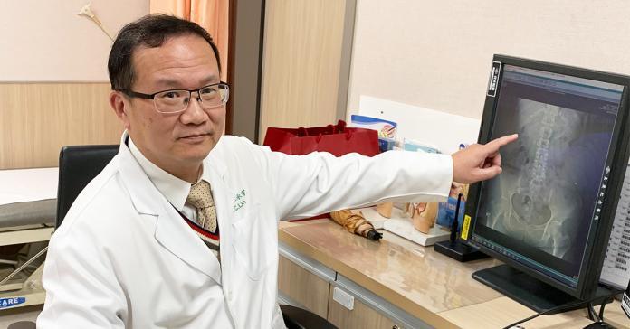 腎結石長滿輸尿管如葡萄 影響排尿嚴重恐腎功能喪失