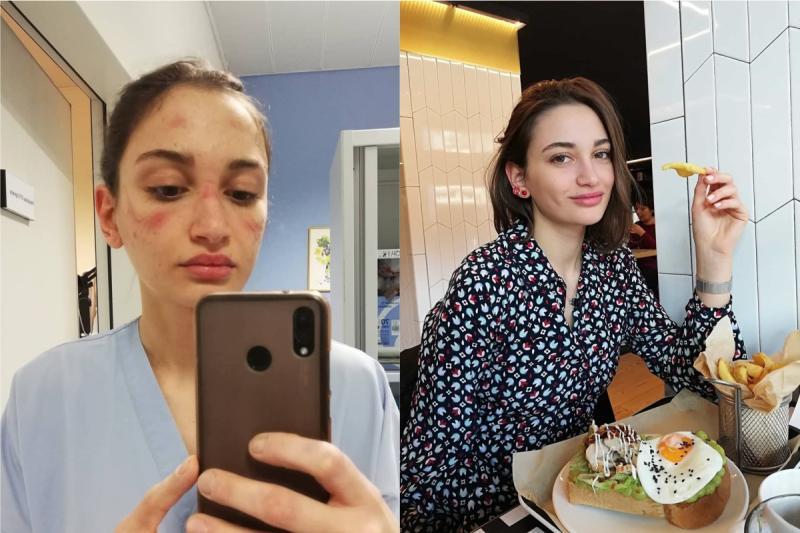 ▲義大利急診護理師 Alessia Bonari 曬出自己因為戴護目鏡滿臉勒痕的照片。(合成圖/翻攝 @alessiabonari_ IG)