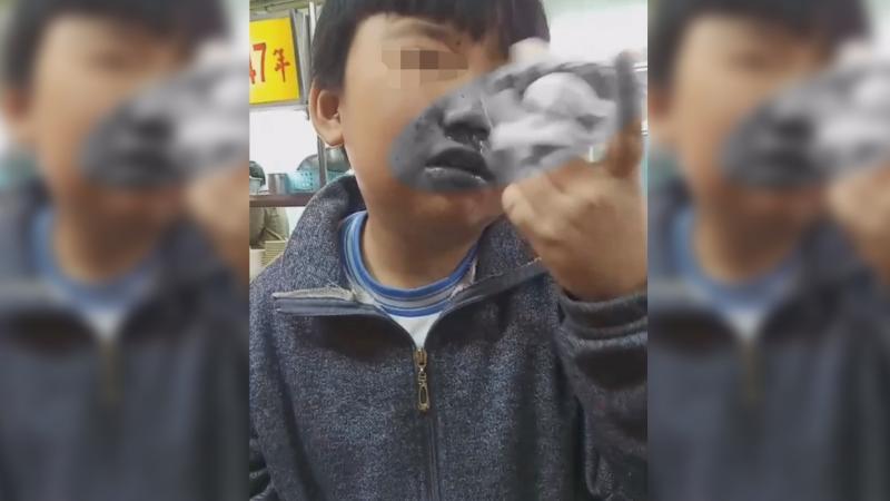 小學生遭呼巴掌到流鼻血 校方辯稱:阻擋飛沫只輕碰嘴巴