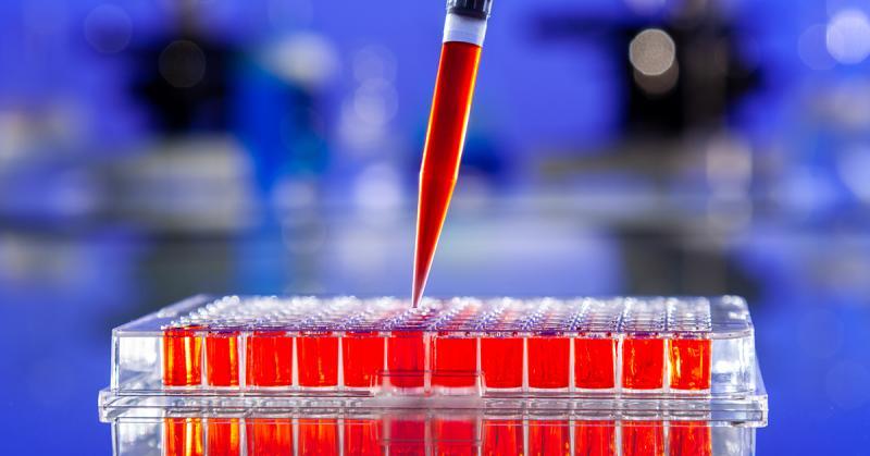 ▲有許多研究單位針對2019新型冠狀病毒COVID-19找尋疫苗與治療藥物,希望能幫助全球對抗這波疫情,其他也有希望藉由自體免疫細胞,讓它成為對抗病毒的方式。(圖/ingimage)