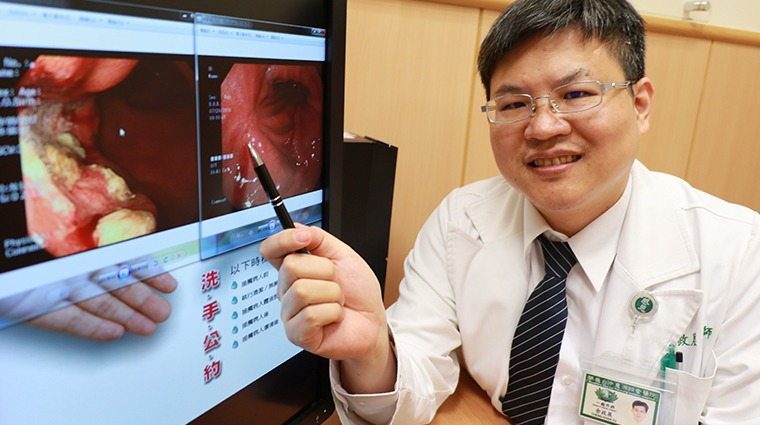 胃癌早期症狀不明顯確診多為晚期 高危險群有這些