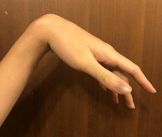 ▲手舉不起來的原因很多,此患者屬於俗稱「週末夜麻痺症候群」的橈神經壓迫造成的。(示意圖