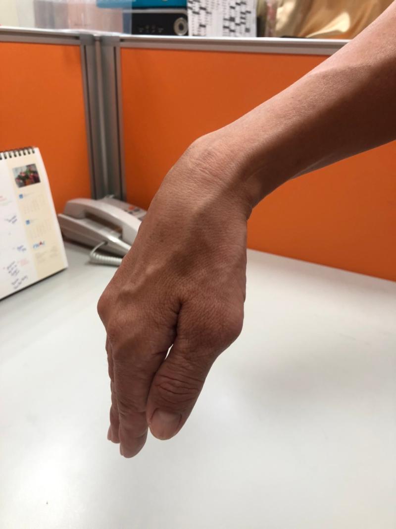 ▲不少人在一覺醒來後,赫然發現自己的一隻手手腕及手指抬不起來。(示意圖