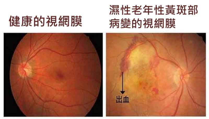輕忽恐失明!<b>白內障</b>合併視網膜黃斑部病變