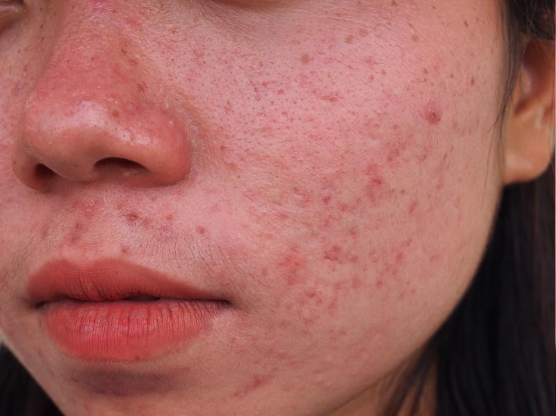 ▲長時間戴口罩加速肌膚出油出汗,痘痘粉刺成為女性最在意的問題(圖/資料照片)