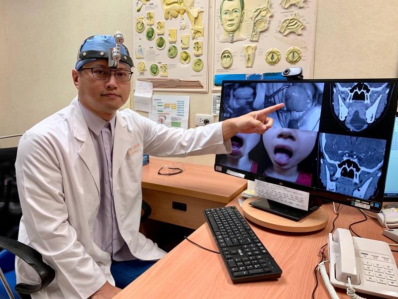 國中女嘴巴含滷蛋像極青蛙鼓下巴 手術取出6公分大囊腫