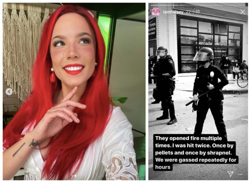 美警害死非裔男 25歲女星街頭聲援遭射擊