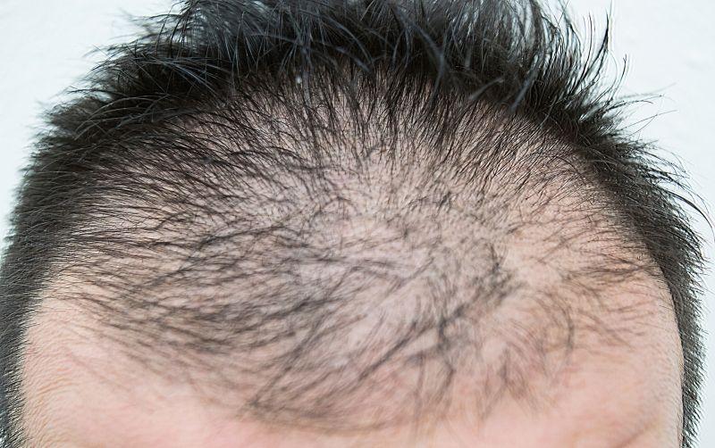 ▲美國布朗大學研究指出,觀察到新冠肺炎重症男性患者,禿頭比例高的情形。(示意圖,非本人/取自photoAC)