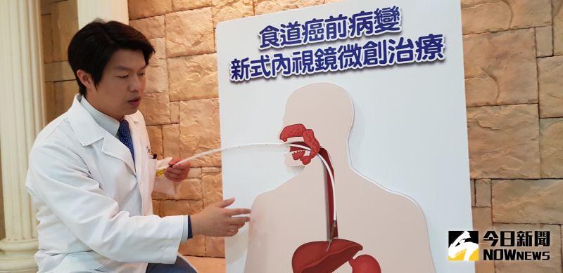 ▲台灣有四分之一人口飽受胃食道逆流之苦,普遍民眾會服用抑制胃酸的藥物,來抑制其所帶來的痛苦。(圖/記者陳雅芳攝,2020.06.15)